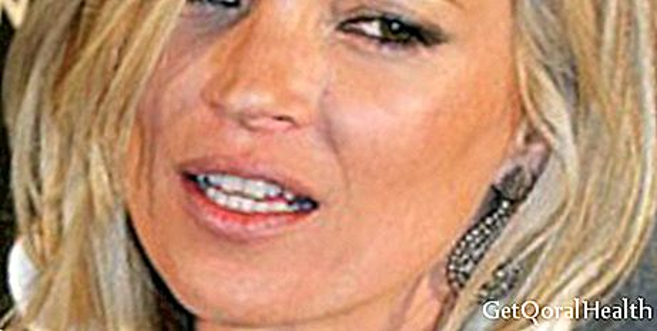 Kate Moss se ne boji sijede kose