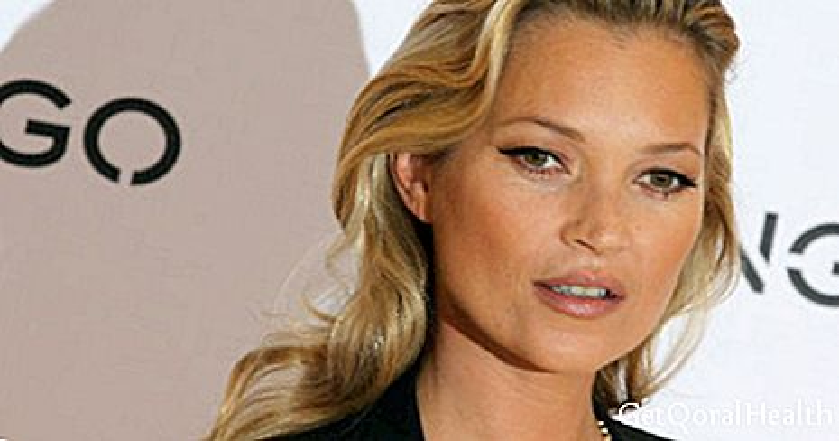 Kate Moss souffre de paralysie