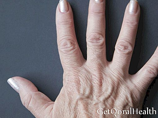 Why do they skip the veins in their hands?