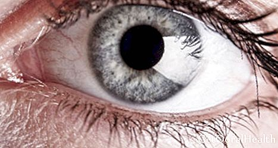 Penjagaan mata pada pesakit kencing manis