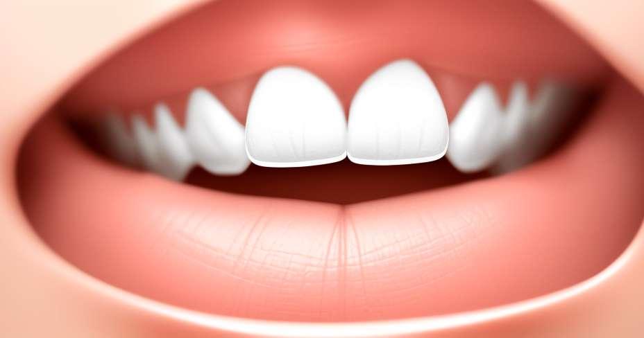 Merokok untuk mengurangkan berat badan adalah mitos yang hebat