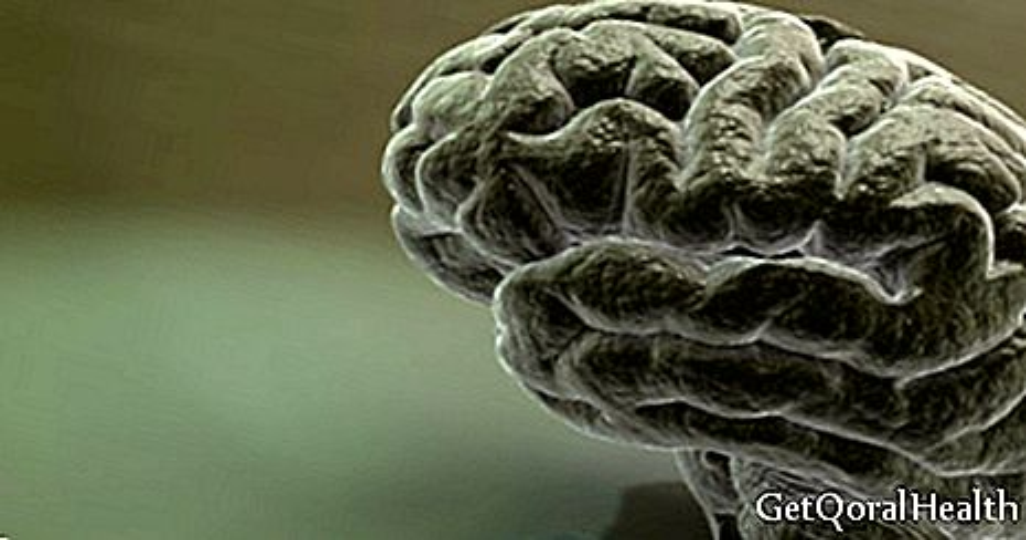 Kecederaan otak menyebabkan sindrom tangan orang lain