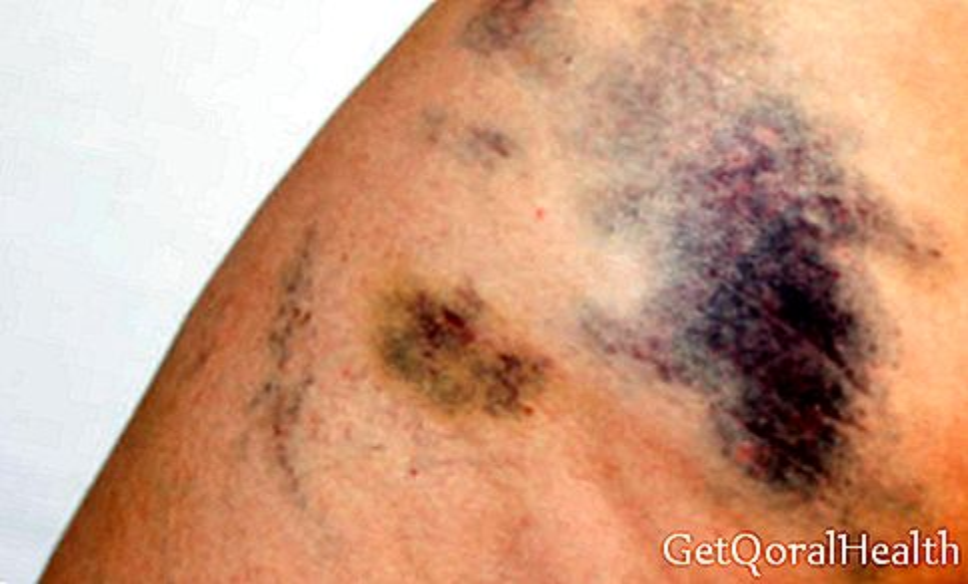 घावों के खिलाफ उपचार