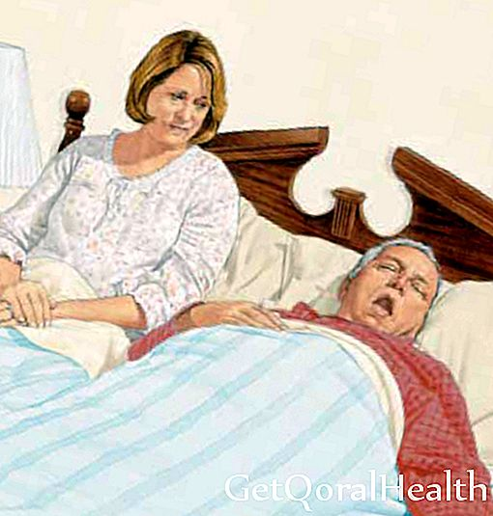توقف التنفس أثناء النوم يؤثر على المكسيكيين