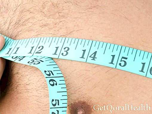 Other causes of gynecomastia: