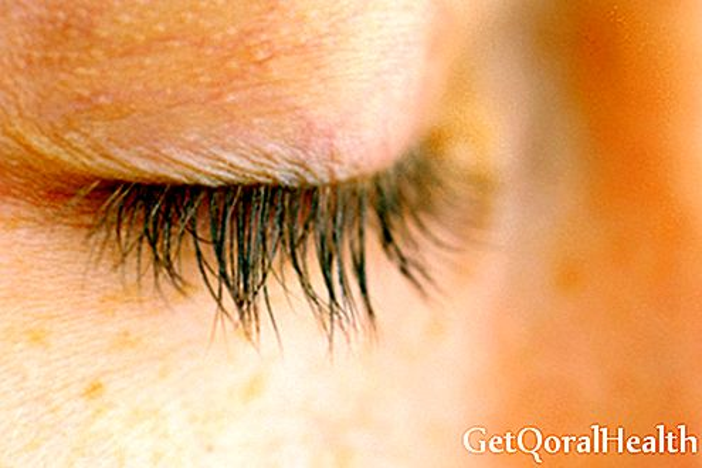Katarakta yra pagrindinė aklumo priežastis