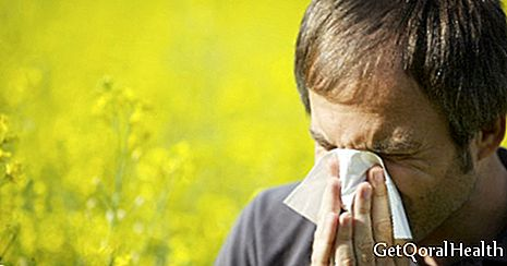 5 cities with the highest prevalence of allergies