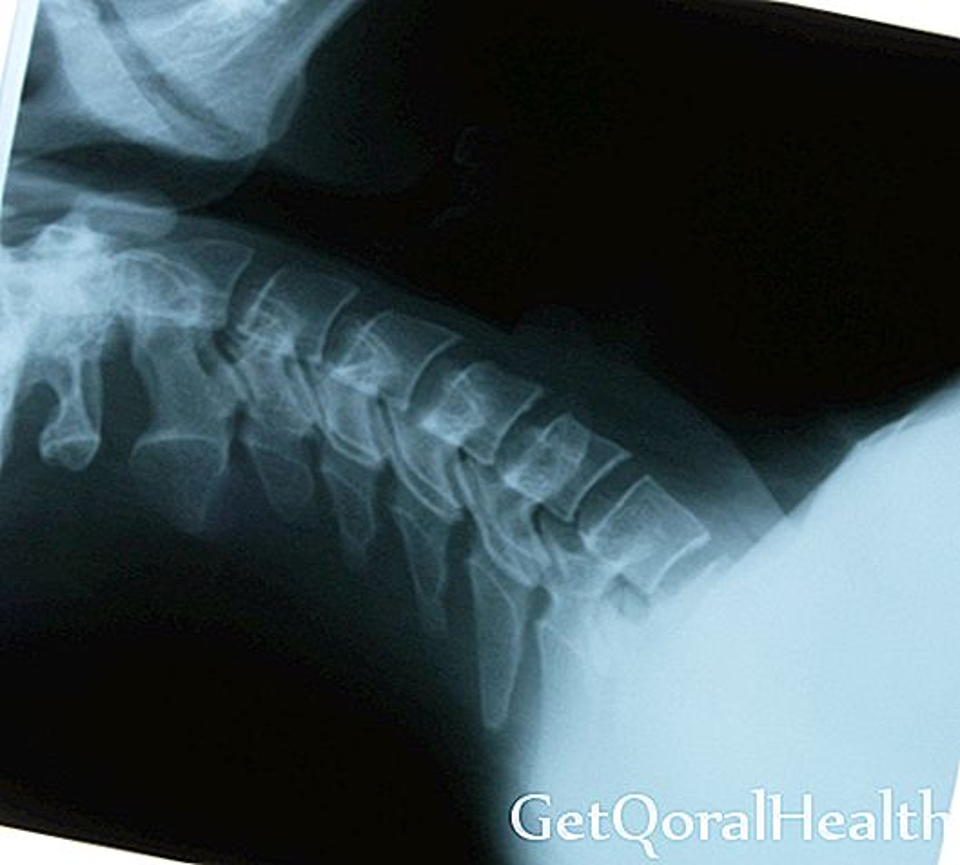 Osteoporose: epidemi hos kvinder
