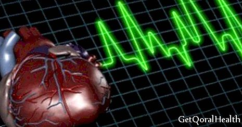 50 ٪ من الذين يعانون من أزمة قلبية تفقد حياتهم
