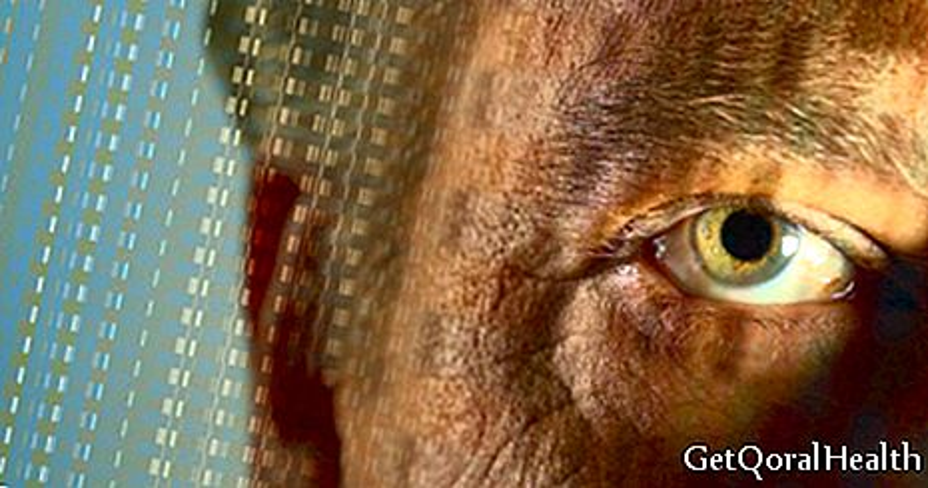 Intraokulares Melanom betrifft ältere Erwachsene