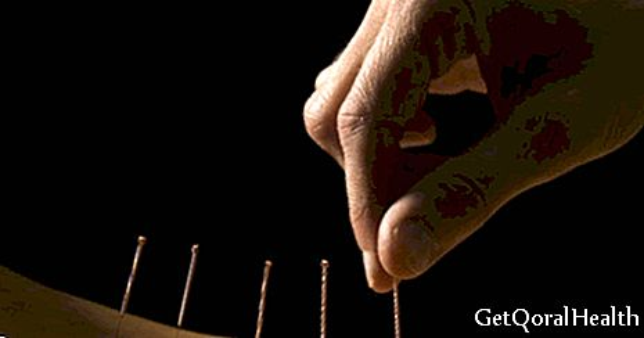 Smršavite s akupunkturom