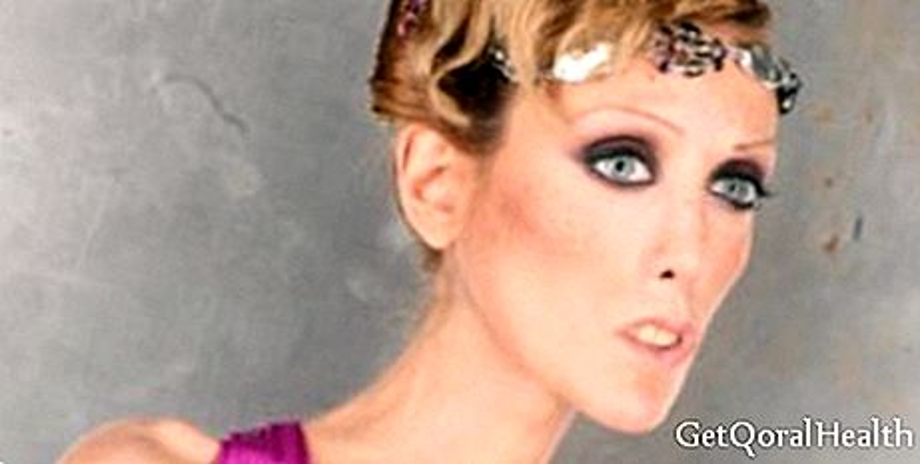 Isabelle Caro umire koji se borio protiv anoreksije