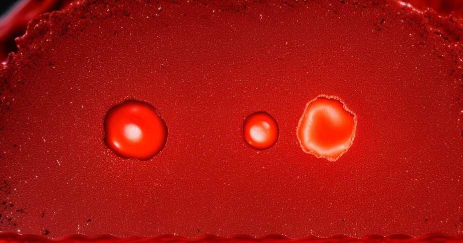Bakterier detonerer nekrotiserende fasciitis
