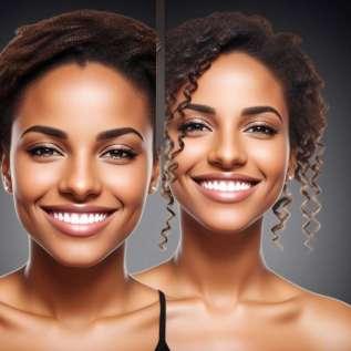 7 koristi akupunkture obraza